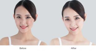 Trước và sau khi sử dụng bộ sản phẩm trắng da quyền năng