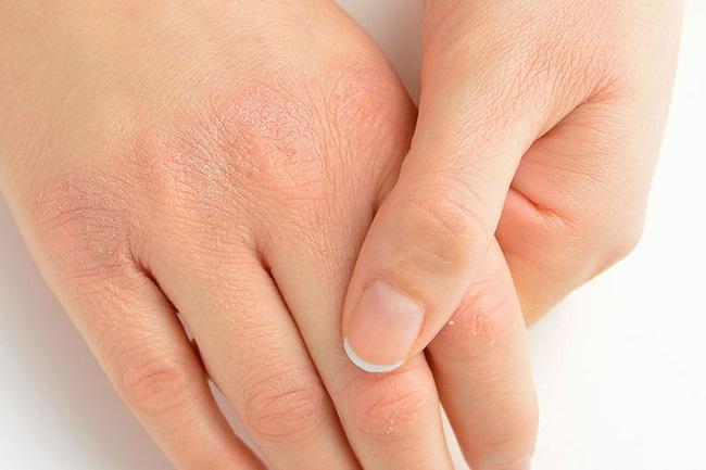 Nguyên nhân gây bong tróc da tay chân