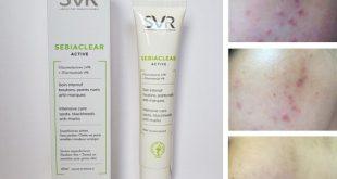Kem trị mụn SVR bác sĩ khuyên dùng trị hết 99% mụn ẩn dưới da
