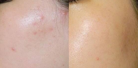 mụn ẩn của da mặt