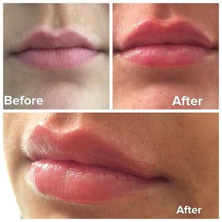 Review son dưỡng hồng môi Image Skincare Ormedic Sheer Pink Lip Enhance Complex