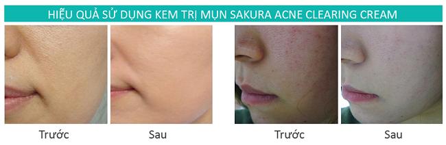 Review hiệu quả kem trị mụn Sakura