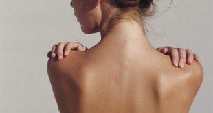 Cách trị mụn lưng hiệu quả tại nhà: Cầm kíp ngay 7 cách SIÊU ĐƠN GIẢN sau